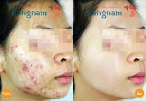 Kết quả khách hàng sau điều trị mụn bằng Oxy-Led tại Kangnam