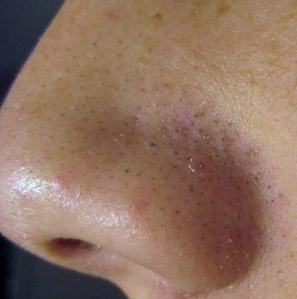 Bật mí cách làm giảm mụn đầu đen với 6 bước massage da mặt 1