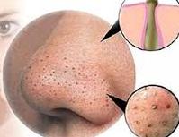 Cách nào loại bỏ tận gốc mụn đầu đen, đảm bảo an toàn cho da?