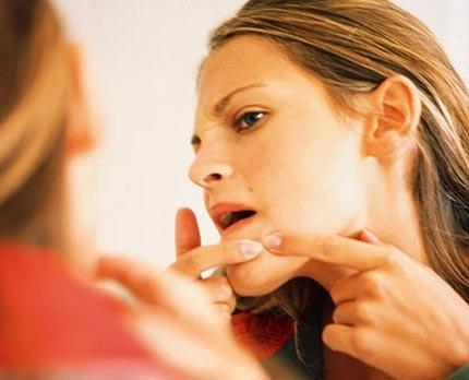 Đâu là cách trị mụn cám trên mặt mang lại kết quả tốt nhất? 2