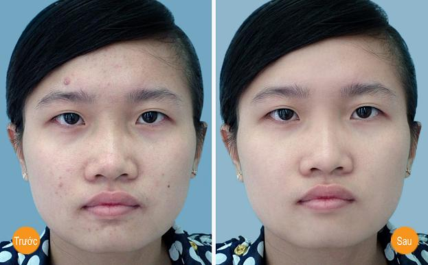 Đâu là cách trị mụn cám trên mặt mang lại kết quả tốt nhất? 6