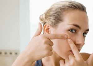 Những tác hại bạn nên biết khi nặn mụn đầu đen không đúng cách