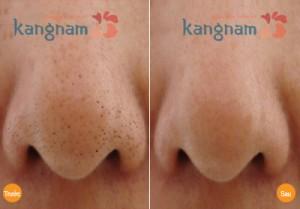 Hiệu quả trị mụn đầu đen sau 4 đến 6 lần tại Kangnam1