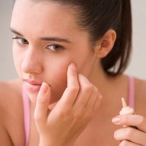 5 ghi nhớ để sử dụng thuốc trị mụn an toàn và hiệu quả
