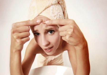 Bật mí cách trị mụn trứng cá ở trên mặt hiệu quả nhanh chóng 4