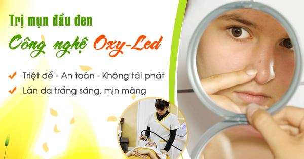 Trị mụn đầu đen bằng công nghệ Oxy - Led tại TMV Kangnam