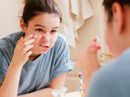 Bày cách trị mụn nhanh chóng cho teen ở tuổi dậy thì 4