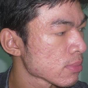 Bị mụn bọc và sẹo rỗ nên điều trị bằng phương pháp nào?