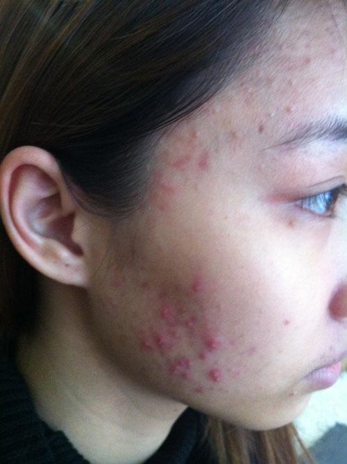 Làm sạch da, trị mụn tại gia với nguyên liệu hoàn toàn tự nhiên 1