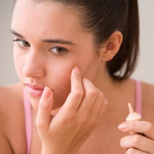 Làn da nổi mụn – Vì sao nên nỗi? 2