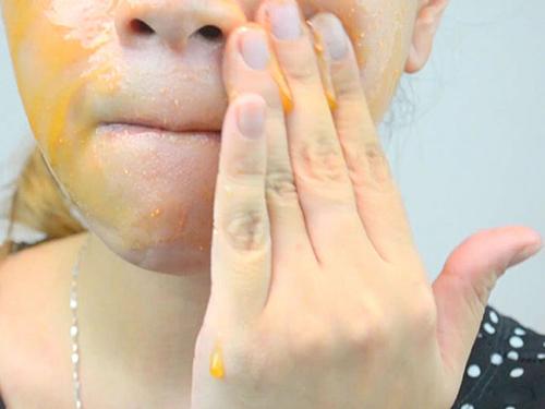 """""""Mách bạn"""" cách tự điều chế mặt nạ trị mụn bằng Aspirin5"""