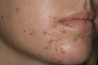 5.2 4 bước đơn giản đem lại làn da sạch mụn
