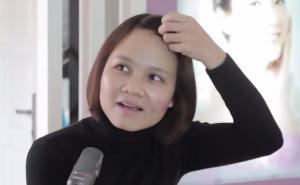 Chia sẻ của chị Nguyễn Thị Thuận – Khách hàng trị mụn tại Kangnam