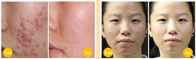 Trị mụn mủ trắng trên mặt không tái phát chỉ một liệu trình duy nhất3