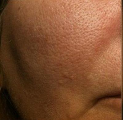 Hiểu đúng về mụn đầu đen để có cách chữa mụn đầu đen hiệu quả4