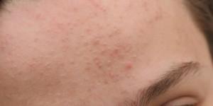 Đâu là biện pháp trị mụn cám và se khít lỗ chân lông hiệu quả?