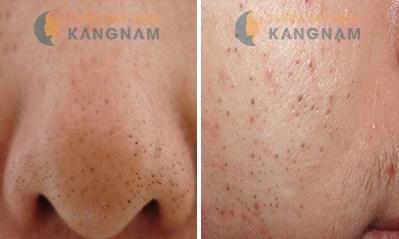 Mách bạn 3 loại mặt nạ trị mụn đầu đen cho da nhờn hiệu quả? 1
