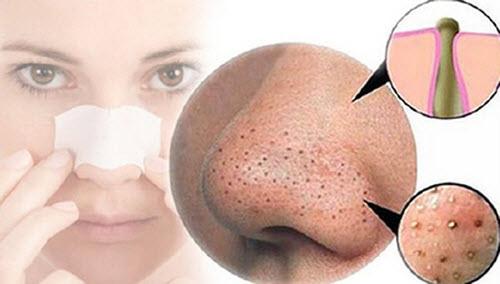 loại bỏ mụn đầu đen trên mũi