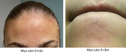 Phương pháp trị mụn cám hiệu quả cho da đẹp không tì vết 3