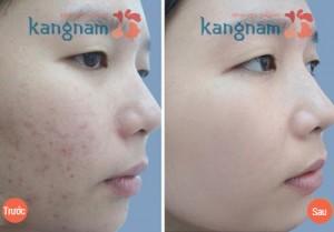 Hiệu quả trị mụn đầu trắng sau 4 đến 6 lần tại Kangnam