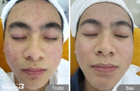 quy trình điều trị mụn bằng công nghệ nano skin 8