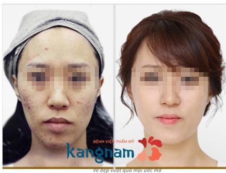 quy trình điều trị mụn bằng công nghệ nano skin 10