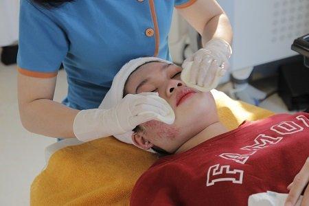 quy trình điều trị mụn bằng công nghệ nano skin 2