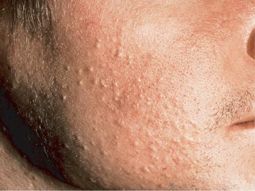 Bí kíp trị mụn sần hiệu quả giúp da sạch mụn, đẹp tự tin 1