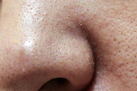 trị mụn cám bằng oxy-led có đau không? 1