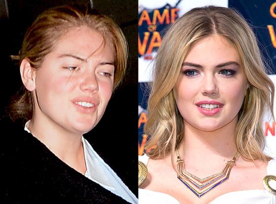 Phát hoảng với làn da đầy mụn của sao Hollywood 4