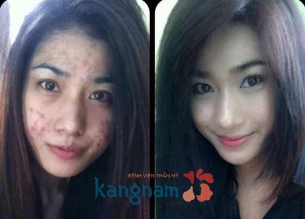Hình ảnh trước và sau trị mụn