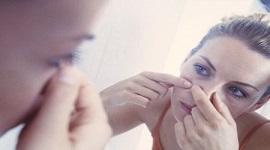 Có nên đi nặn mụn ở spa không? – Mặt tốt và xấu khi đến spa trị mụn