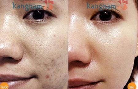 các loại mụn trên da mặt 6