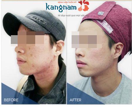 Chi phí điều trị mụn tại Kangnam