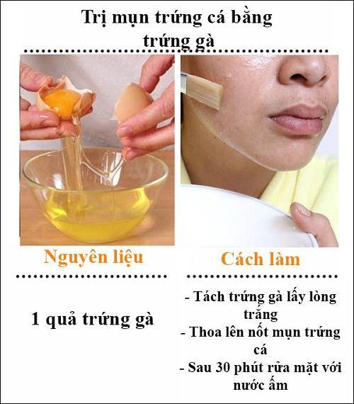 cách chữa mụn trứng cá 3