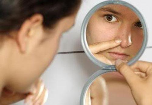 4 cách chữa trị mụn đầu đen nhanh và hiệu quả nhất 1