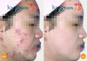 Hiệu quả trị mụn cho nam và nữ tại BVTM Kangnam