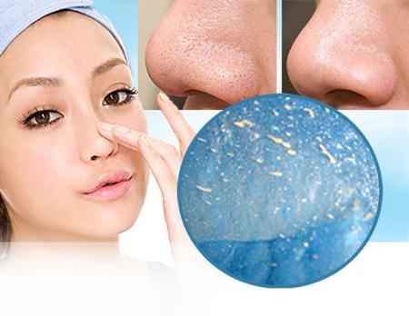 Làm sao để trị sạch mụn cám trên mặt? 2