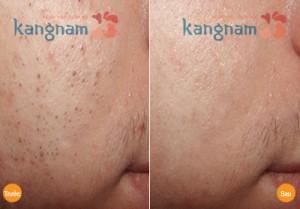 Mách bạn 3 loại mặt nạ trị mụn đầu đen cho da nhờn hiệu quả