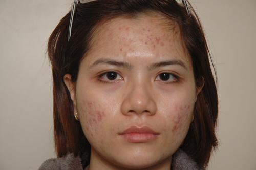 Cách hay trị mụn hiệu quả cho làn da nhờn 2