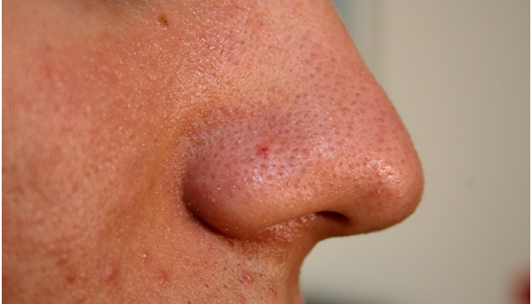 Cách làm mất mụn đầu đen trên mũi 1