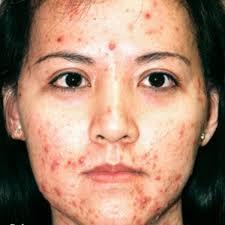 Mách nước cách chăm sóc và điều trị da mặt bị mụn hữu hiệu 1