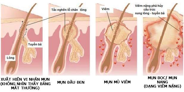 Mụn bọc là dạng mụn nặng do cấu trúc nang lông, tuyến bã bị phá hủy