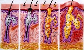 Mụn bọc chịu tác động của 2 yếu tố chính, đó là nội tiết tố và vi khuẩn sống ở nang lông