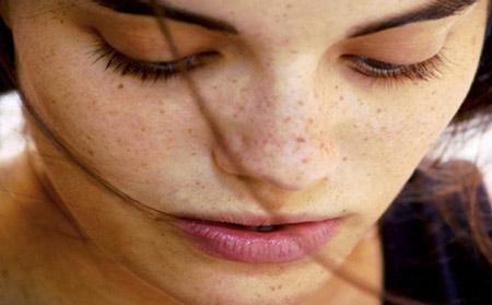 Tự làm mặt nạ mật ong trị mụn đầu đen 1