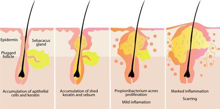 Phương pháp điều trị mụn trứng cá tận gốc 3
