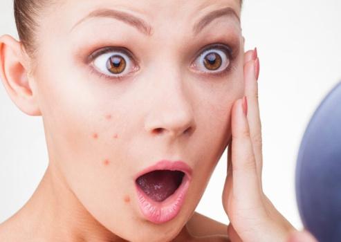 4 bước cải thiện tình trạng da mụn bạn nên học hỏi 1