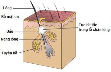 Bật mí cách làm giảm mụn cám ở mũi nhanh nhất - hiệu quả nhất 2