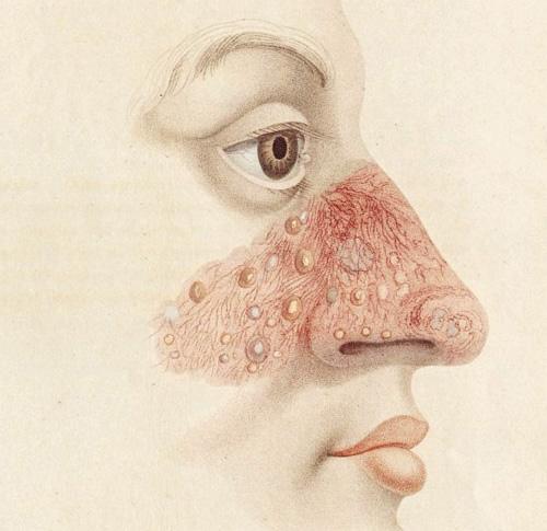 mụn mọc ở mũi 2