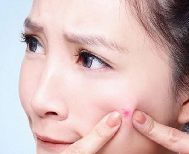 Cách trị mụn ẩn dưới da không đau rát4